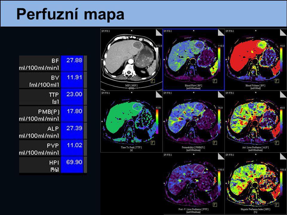 Nová modifikace perfuzního CT umožňující zobrazit celý objem orgánu velký počet detektorů kyvadlové pohyby stolu Objemové perfuzní CT jater