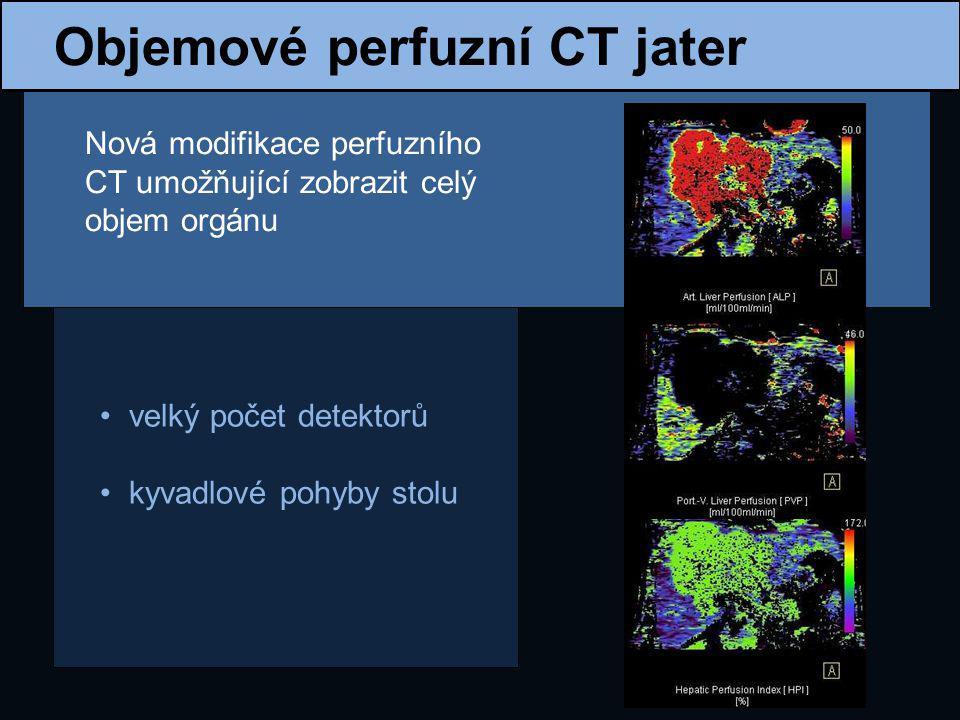 Metastázy CRC CRC je jedním z nejčastějších nádorů u poloviny nemocných se během léčby objeví metastázy jsou to nejčastější maligní ložiska v játrech možnosti terapie ovlivňuje počet ložisek, jejich uložení a velikost