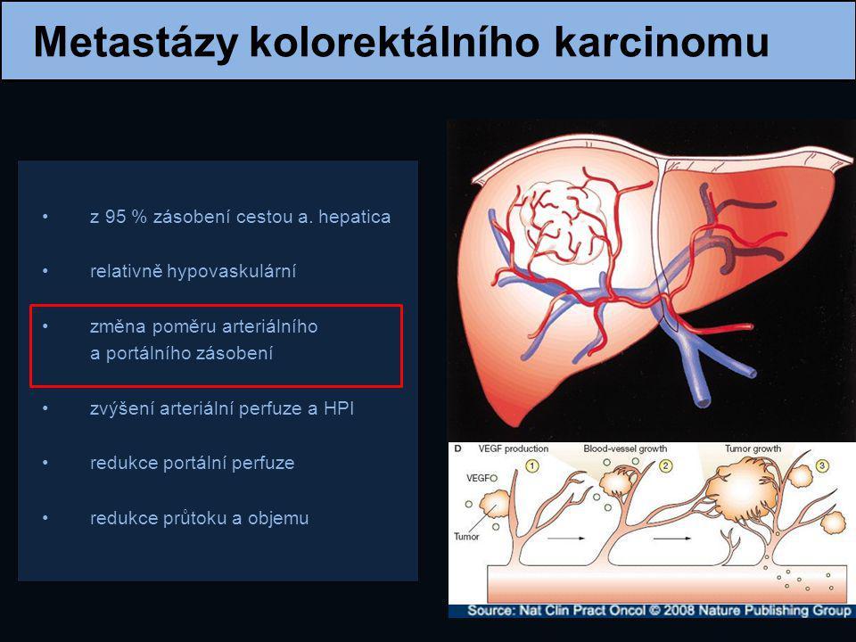 "Význam CT v diagnostice MetodaSE ""per lesion SE ""per patient CT74,4 %83,6 % MRI75,8 %88,2 % PET/CT81,4 %94,1 % Metaanalýza - Niekel et al."