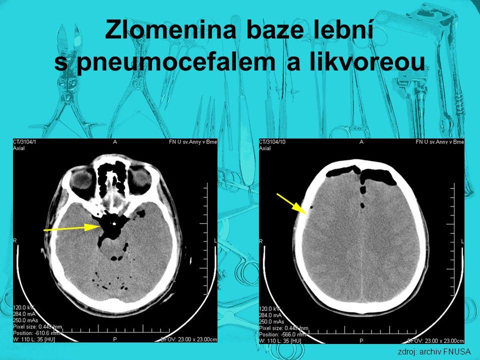 Zlomenina baze lební s pneumocefalem a likvoreou zdroj: archiv FNUSA