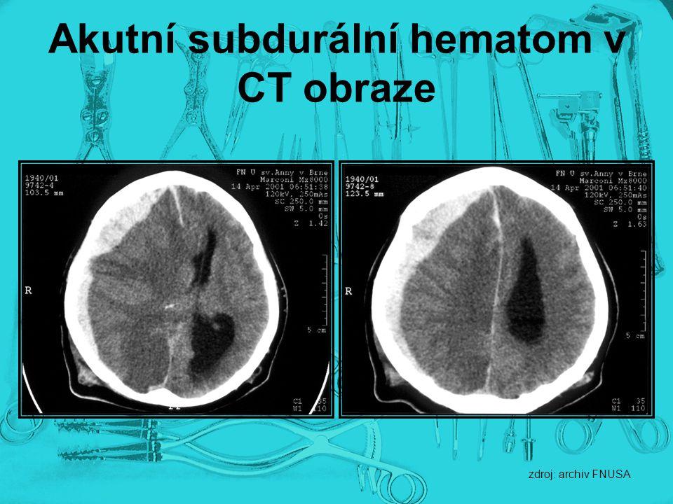 Akutní subdurální hematom v CT obraze zdroj: archiv FNUSA