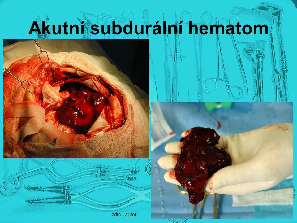 Akutní subdurální hematom zdroj: autor