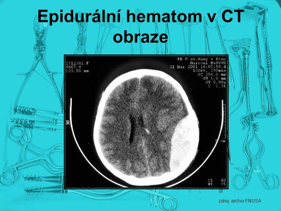 Epidurální hematom v CT obraze zdroj: archiv FNUSA