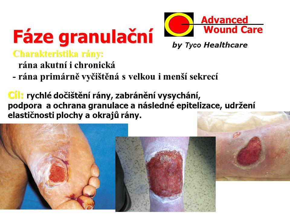 Fáze granulační Charakteristika rány: Fáze granulační Charakteristika rány: - rána akutní i chronická - rána primárně vyčištěná s velkou i menší sekre