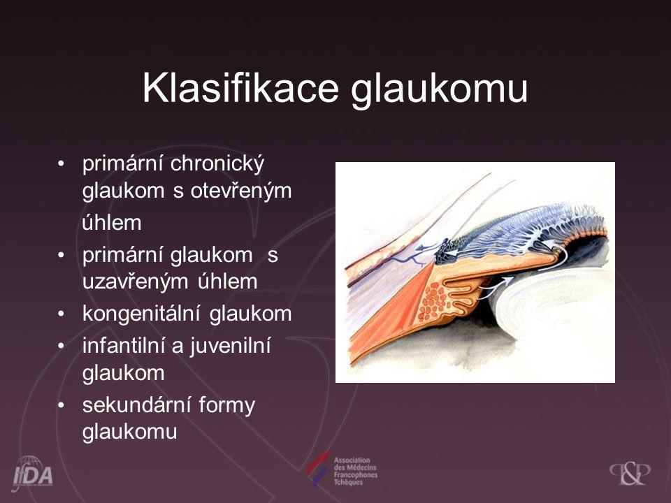 Klasifikace glaukomu primární chronický glaukom s otevřeným úhlem primární glaukom s uzavřeným úhlem kongenitální glaukom infantilní a juvenilní glaukom sekundární formy glaukomu