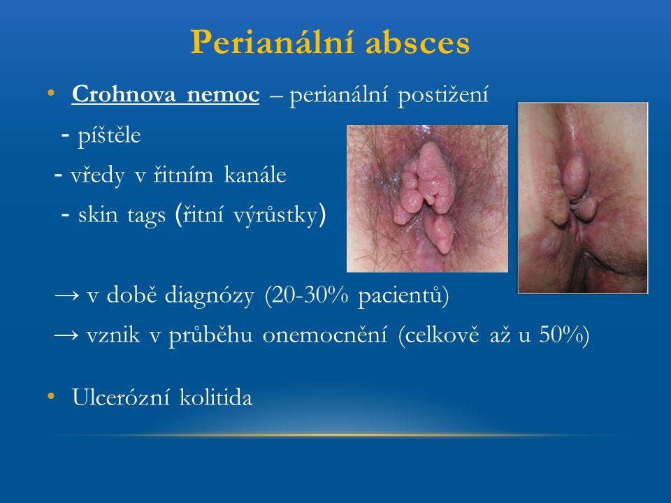 Perianální absces Crohnova nemoc – perianální postižení - píštěle - vředy v řitním kanále - skin tags ( řitní výrůstky ) → v době diagnózy (20-30% pac