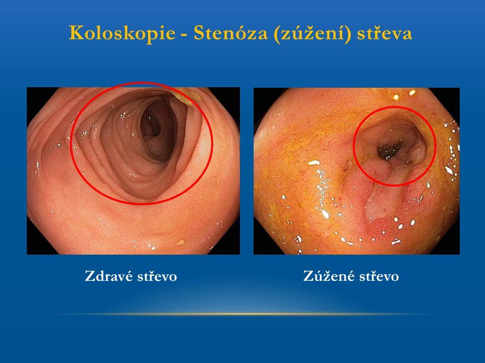 Koloskopie - Stenóza (zúžení) střeva Zdravé střevo Zúžené střevo