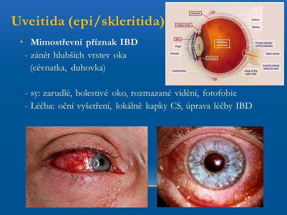 Uveitida (epi/skleritida) Mimostřevní příznak IBD - zánět hlubších vrstev oka (cévnatka, duhovka) - sy: zarudlé, bolestivé oko, rozmazané vidění, foto