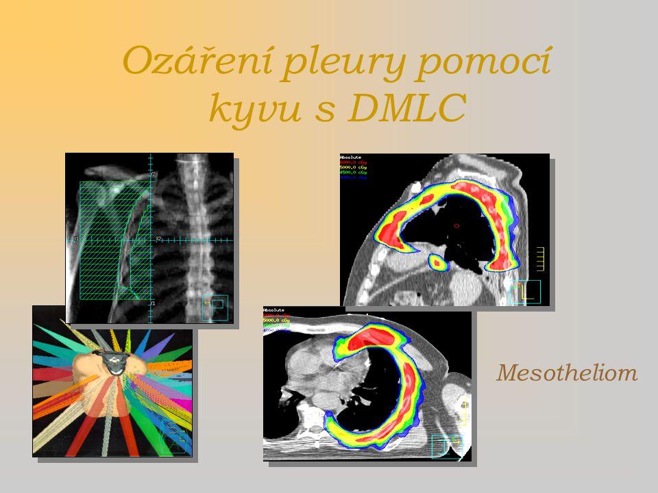 Ozáření pleury pomocí kyvu s DMLC Mesotheliom