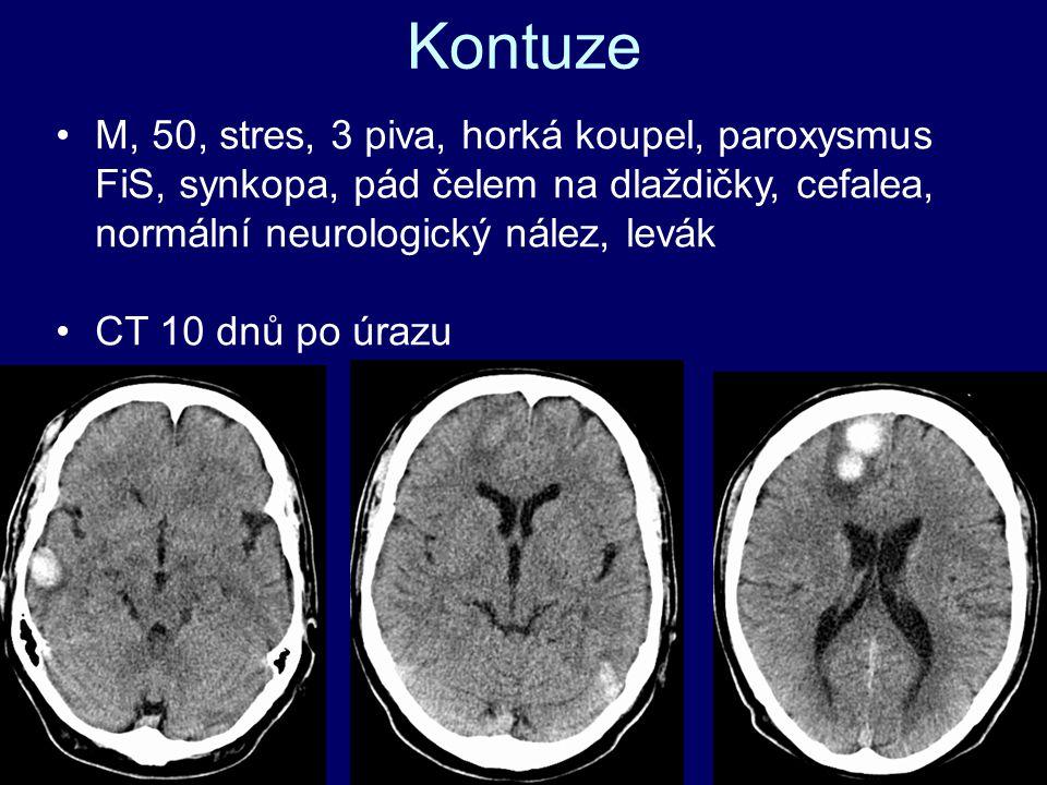 M, 50, stres, 3 piva, horká koupel, paroxysmus FiS, synkopa, pád čelem na dlaždičky, cefalea, normální neurologický nález, levák CT 10 dnů po úrazu Kontuze