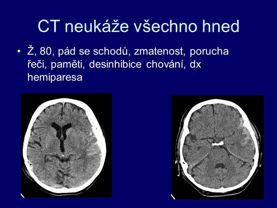 CT neukáže všechno hned Ž, 80, pád se schodů, zmatenost, porucha řeči, paměti, desinhibice chování, dx hemiparesa