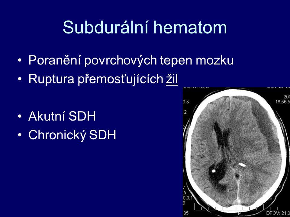 Subdurální hematom Poranění povrchových tepen mozku Ruptura přemosťujících žil Akutní SDH Chronický SDH