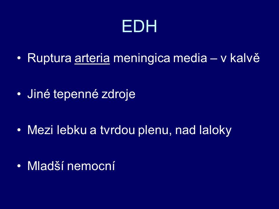 EDH Ruptura arteria meningica media – v kalvě Jiné tepenné zdroje Mezi lebku a tvrdou plenu, nad laloky Mladší nemocní