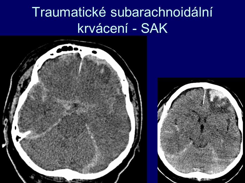 Traumatické subarachnoidální krvácení - SAK