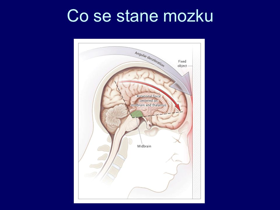 Co se stane mozku