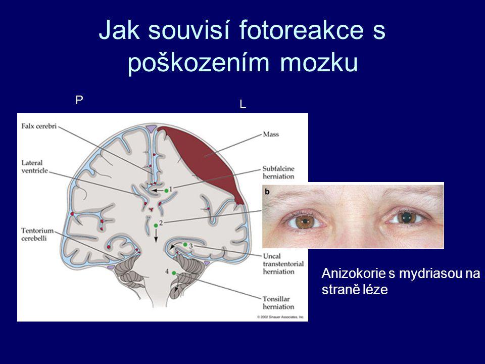 Jak souvisí fotoreakce s poškozením mozku Anizokorie s mydriasou na straně léze L P