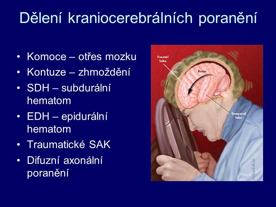 Dělení kraniocerebrálních poranění Komoce – otřes mozku Kontuze – zhmoždění SDH – subdurální hematom EDH – epidurální hematom Traumatické SAK Difuzní axonální poranění