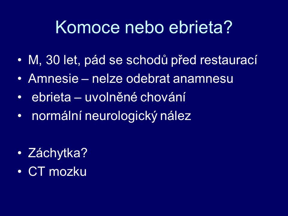 Komoce nebo ebrieta.