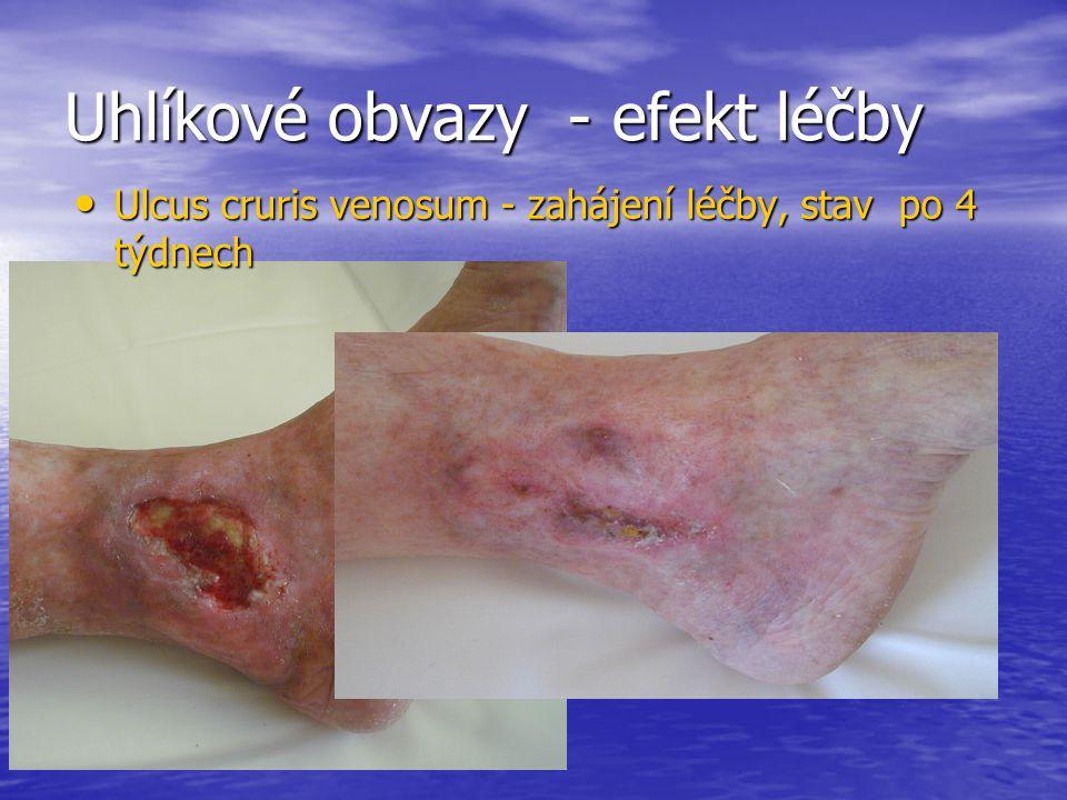 Uhlíkové obvazy - efekt léčby Ulcus cruris venosum - zahájení léčby, stav po 4 týdnech Ulcus cruris venosum - zahájení léčby, stav po 4 týdnech