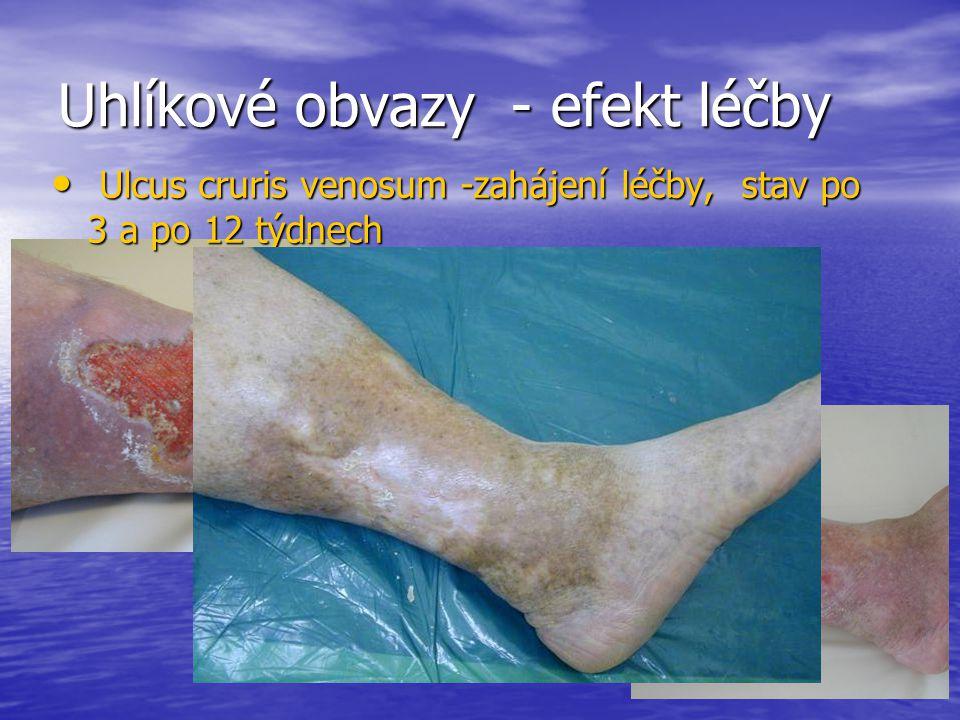 Uhlíkové obvazy - efekt léčby Ulcus cruris venosum -zahájení léčby, stav po 3 a po 12 týdnech Ulcus cruris venosum -zahájení léčby, stav po 3 a po 12