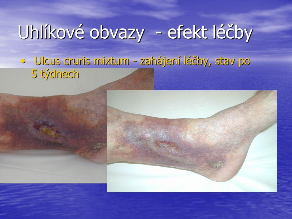 Uhlíkové obvazy - efekt léčby Ulcus cruris mixtum - zahájení léčby, stav po 5 týdnech Ulcus cruris mixtum - zahájení léčby, stav po 5 týdnech