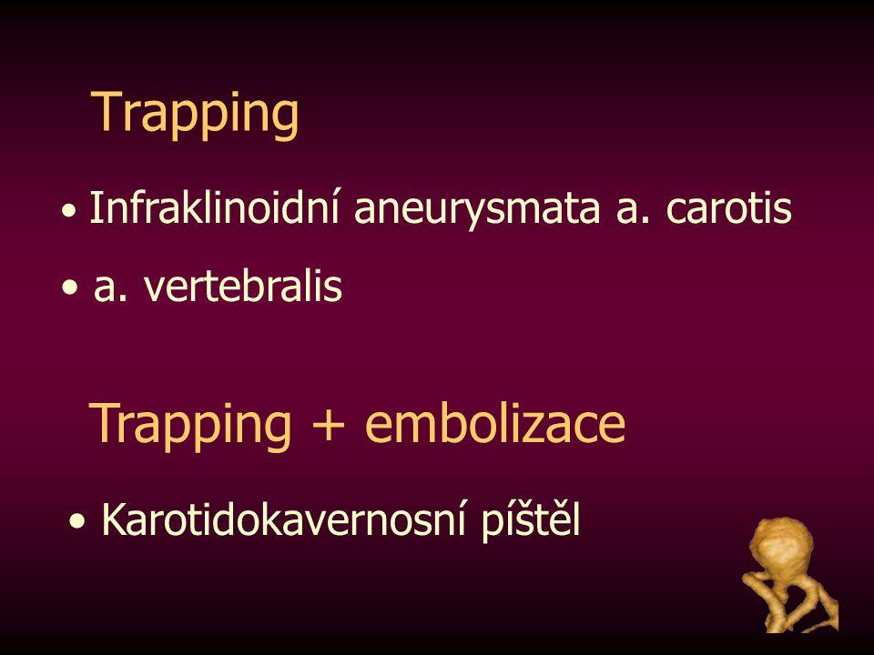 Trapping Infraklinoidní aneurysmata a. carotis a. vertebralis Trapping + embolizace Karotidokavernosní píštěl