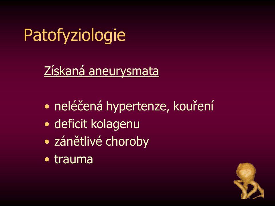 Patofyziologie Získaná aneurysmata neléčená hypertenze, kouření deficit kolagenu zánětlivé choroby trauma