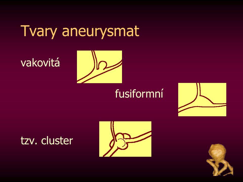 Tvary aneurysmat vakovitá fusiformní tzv. cluster