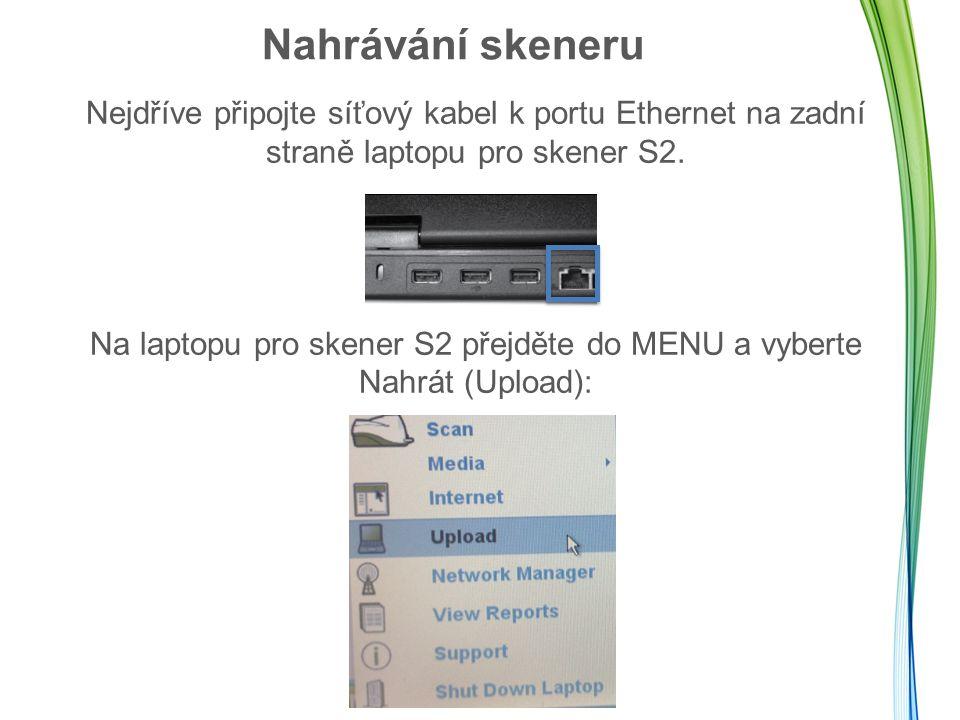 Nahrávání skeneru Nejdříve připojte síťový kabel k portu Ethernet na zadní straně laptopu pro skener S2.