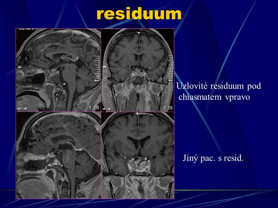 residuum Uzlovité residuum pod chiasmatem vpravo Jiný pac. s resid.