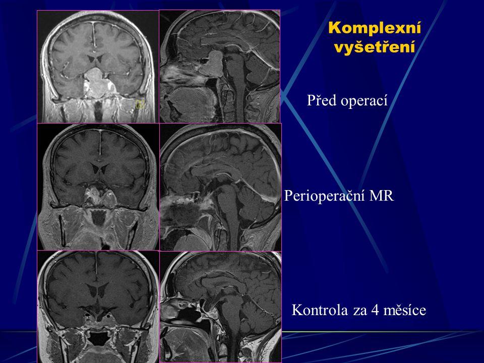 Komplexní vyšetření Před operací Perioperační MR Kontrola za 4 měsíce