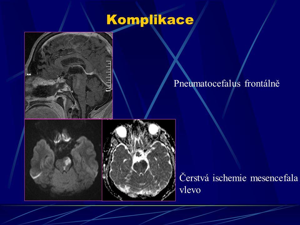 Komplikace Pneumatocefalus frontálně Čerstvá ischemie mesencefala vlevo