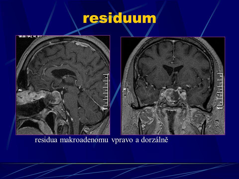 residuum residua makroadenomu vpravo a dorzálně