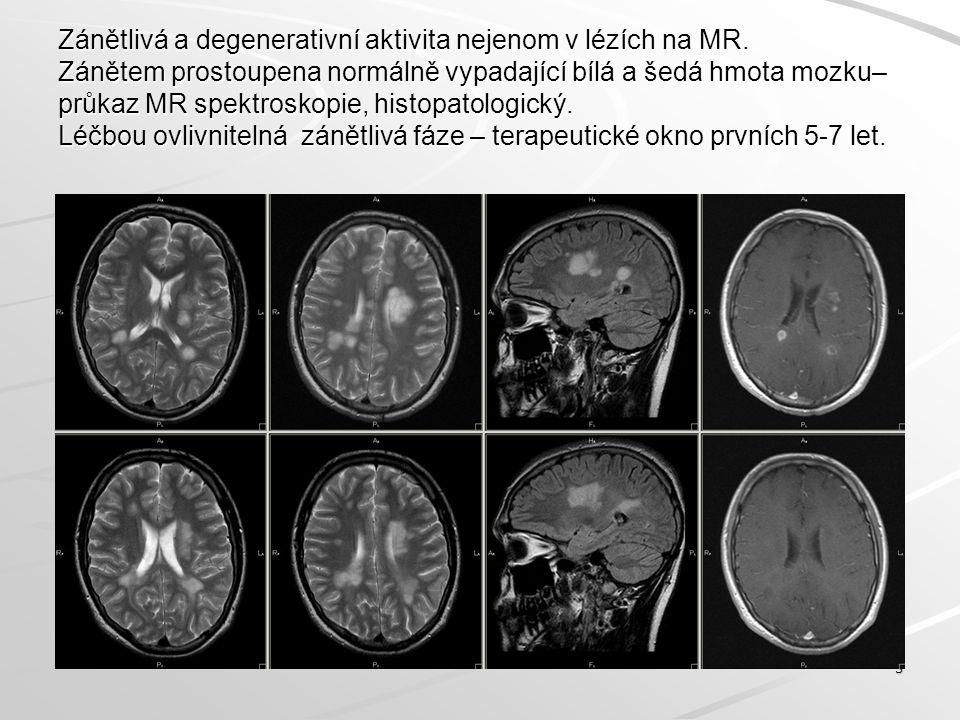 Zánětlivá a degenerativní aktivita nejenom v lézích na MR. Zánětem prostoupena normálně vypadající bílá a šedá hmota mozku– průkaz MR spektroskopie, h
