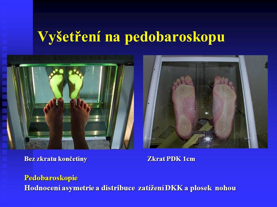Bez zkratu končetiny Zkrat PDK 1cm Pedobaroskopie Hodnocení asymetrie a distribuce zatížení DKK a plosek nohou