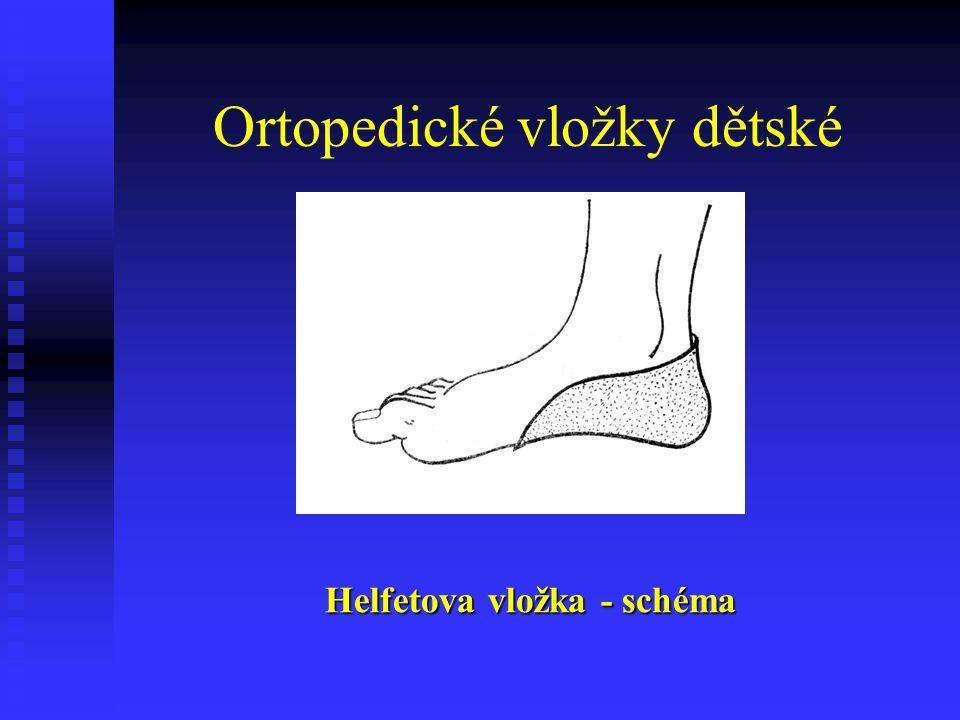 Ortopedické vložky dětské Helfetova vložka - schéma
