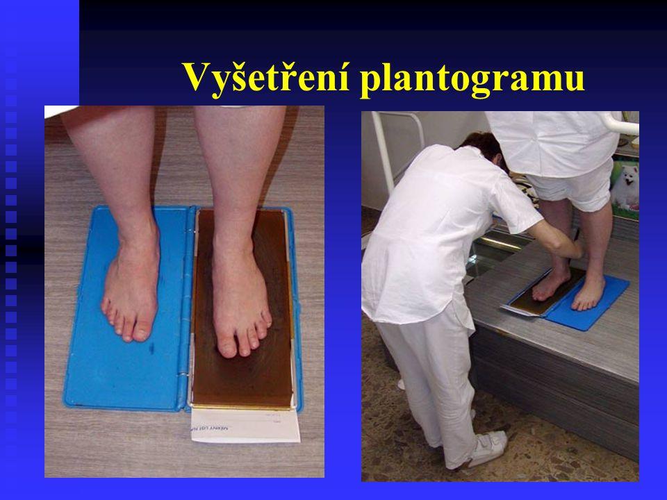Plantogramy chodidel - typy