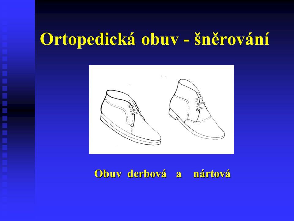 Ortopedická obuv - šněrování Obuv derbová a nártová