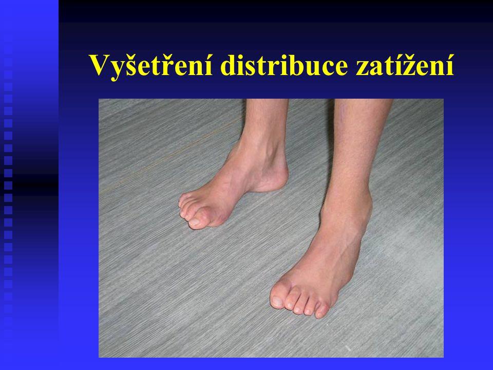 Stabilizační ortézy DK Peroneální dlaha Při paréze n.