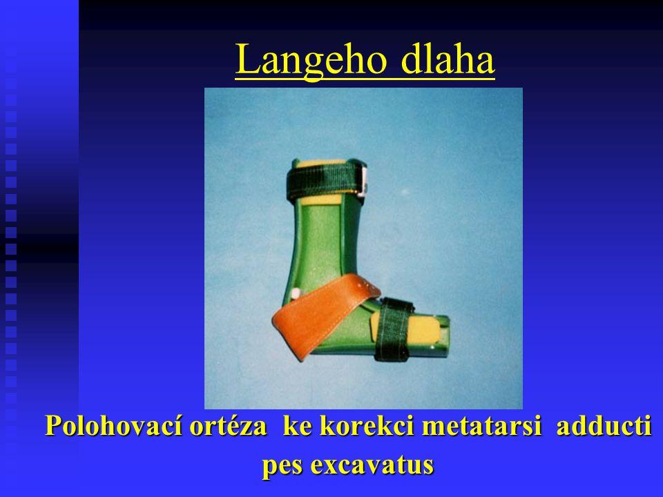 Langeho dlaha Polohovací ortéza ke korekci metatarsi adducti pes excavatus
