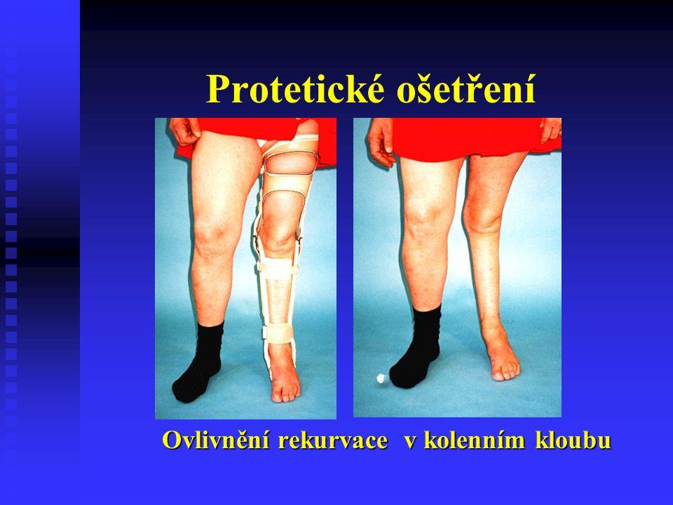 Protetické ošetření Ovlivnění rekurvace v kolenním kloubu