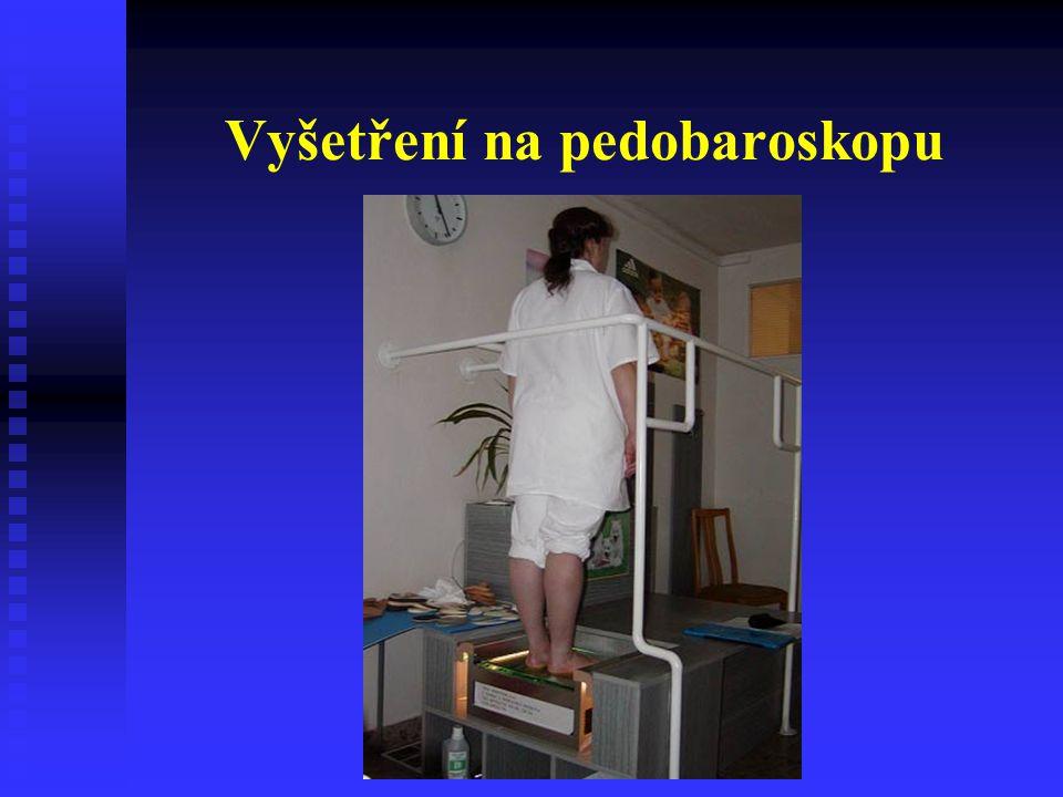 Ortopedická obuv Pomůcka k ošetření vadné nohy, zhotovená individuálně podle lékařského předpisu