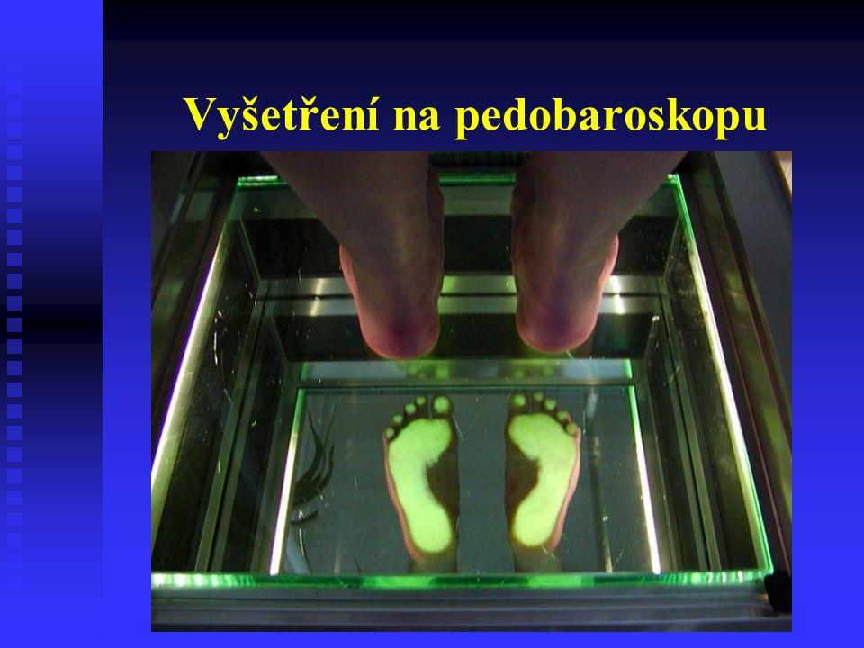 Ortopedická obuv - spodek Podsazený podpatek – ulehčuje odval při chůzi Dozadu prodloužený podpatek – napomáhá plantiflexi - vždy MTT val !!!