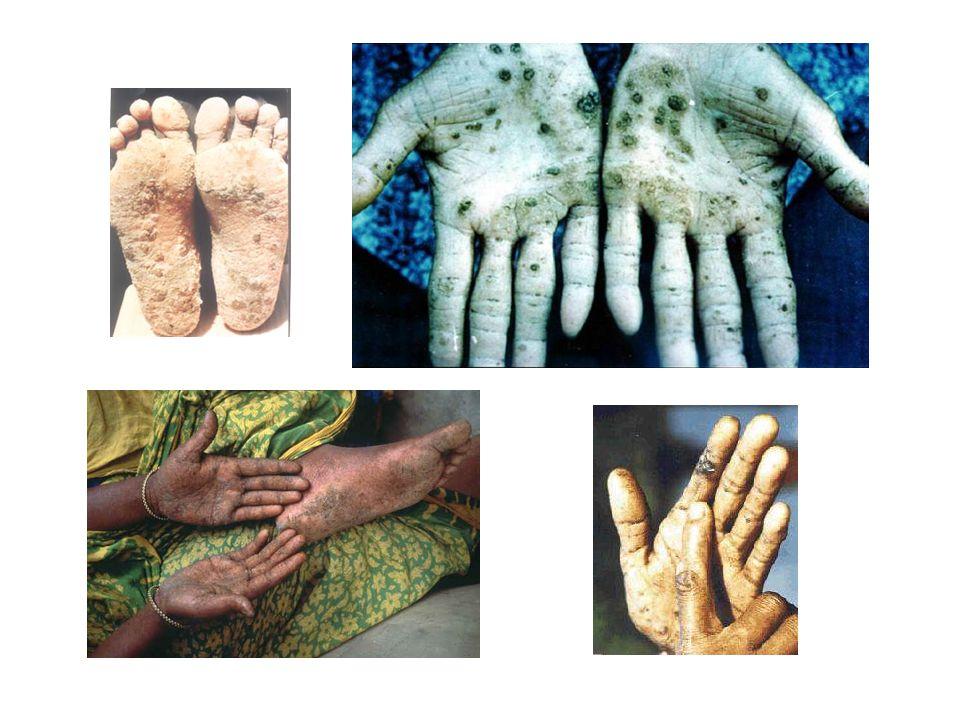Bangladéš Zdravotní následky kontaminace vodních zdrojů As  Rahman 2003 - odhadovaný nárůst počtu nádorových onemocnění (zejména rakovina kůže) v sou