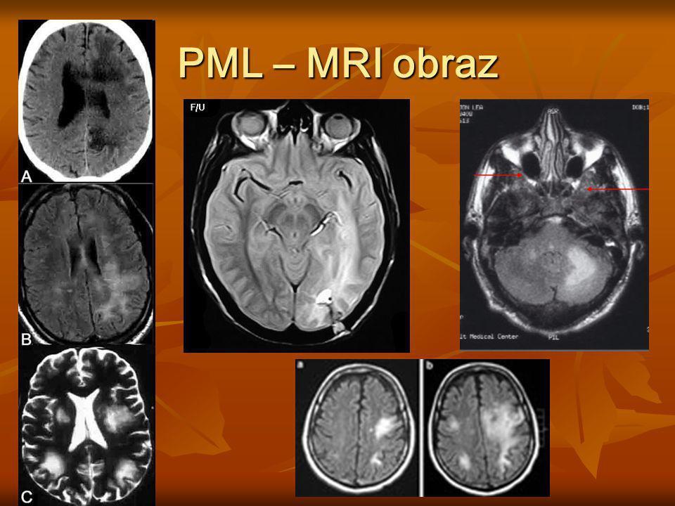 PML – MRI obraz