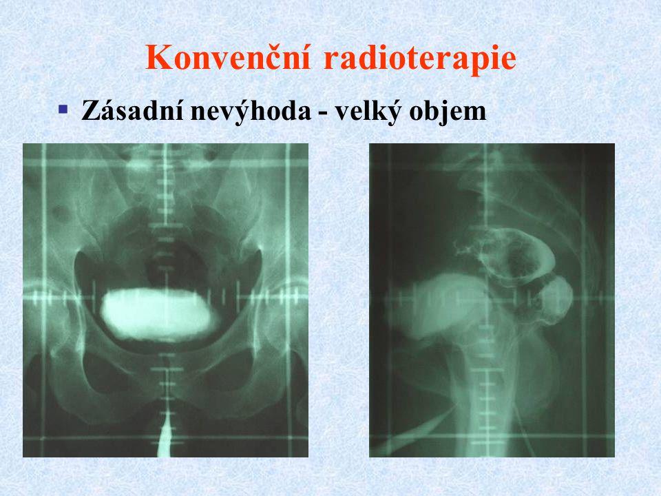 Konvenční radioterapie  Zásadní nevýhoda - velký objem
