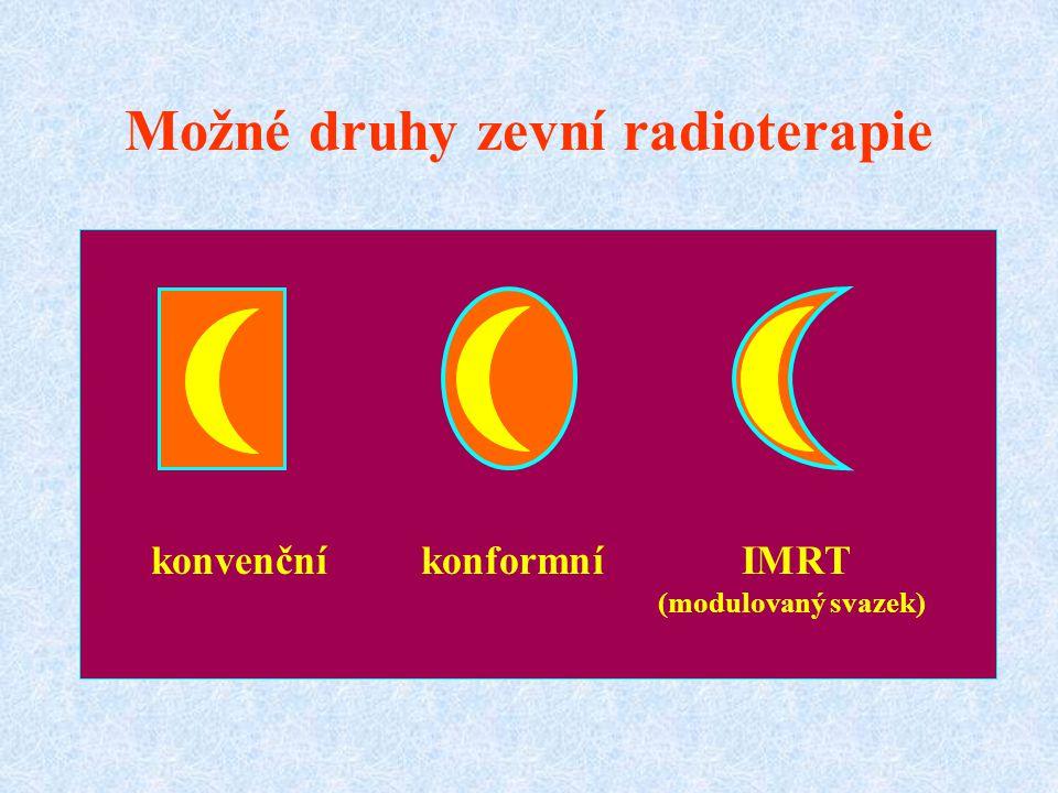 konvenční konformní IMRT (modulovaný svazek) Možné druhy zevní radioterapie