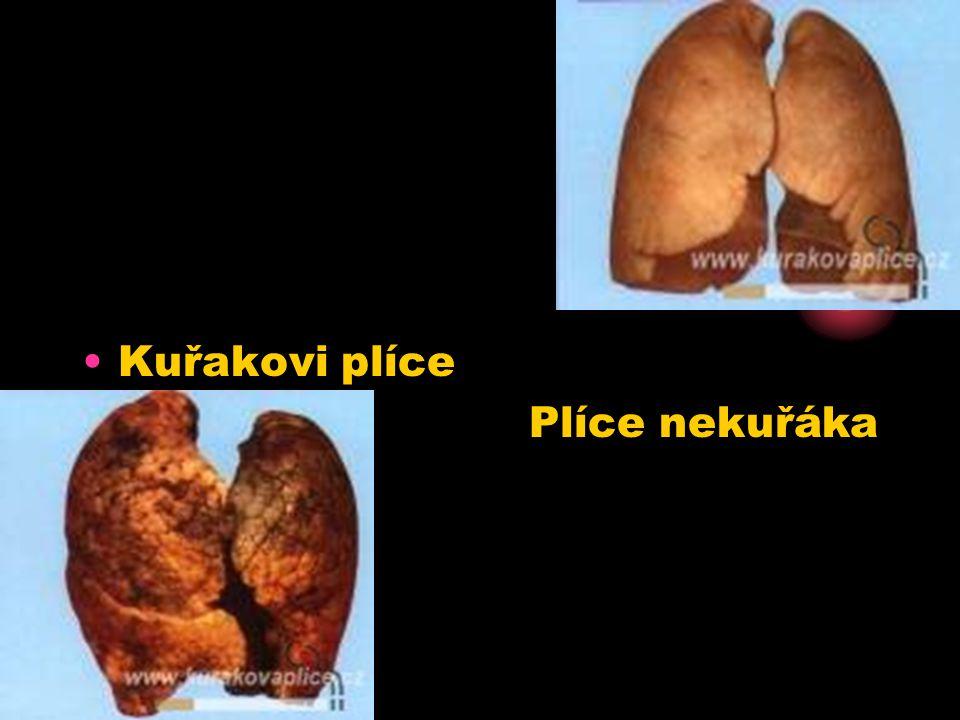 Kuřakovi plíce Plíce nekuřáka nekuřáka