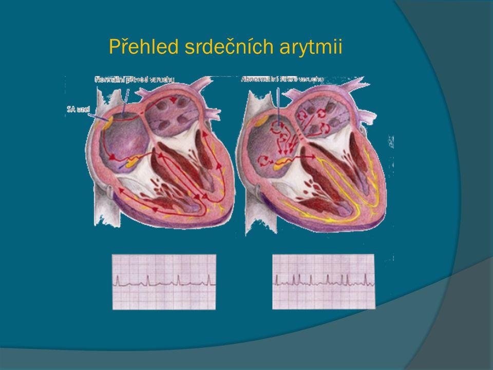 Přehled srdečních arytmii