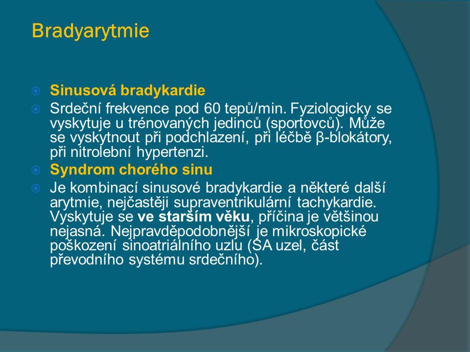 Bradyarytmie  Sinusová bradykardie  Srdeční frekvence pod 60 tepů/min. Fyziologicky se vyskytuje u trénovaných jedinců (sportovců). Může se vyskytno